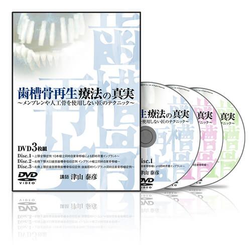 歯槽骨再生療法の真実2│医療情報研究所DVD