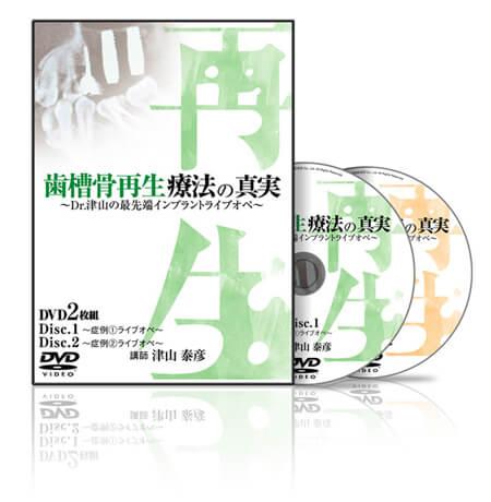 歯槽骨再生療法の真実〜Dr.津山の最先端インプラントライブオペ〜│医療情報研究所DVD