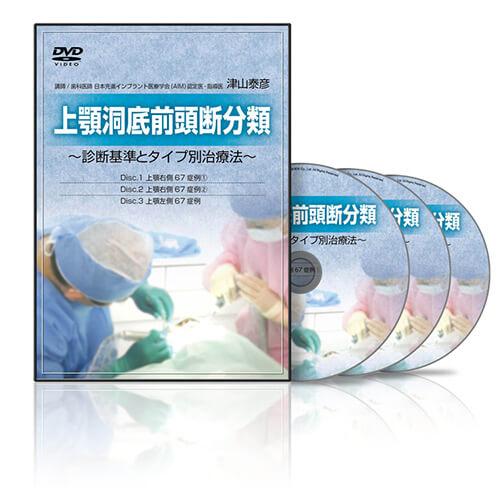 上顎洞底前頭断分類 〜診断基準とタイプ別治療法〜│医療情報研究所DVD
