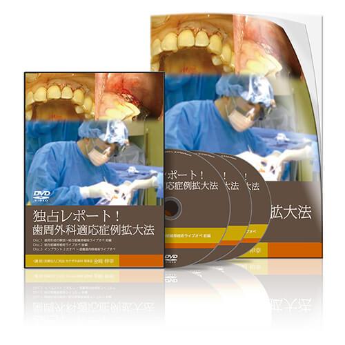 独占レポート!歯周外科適応症例拡大法│医療情報研究所DVD