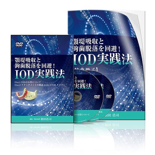 顎堤吸収と鉤歯脱落を回避!IOD実践法│医療情報研究所DVD