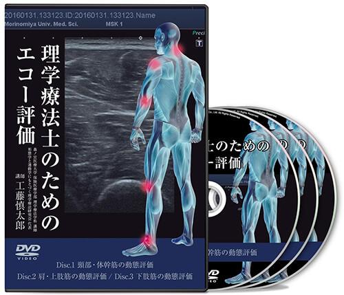 理学療法士のためのエコー評価│医療情報研究所DVD
