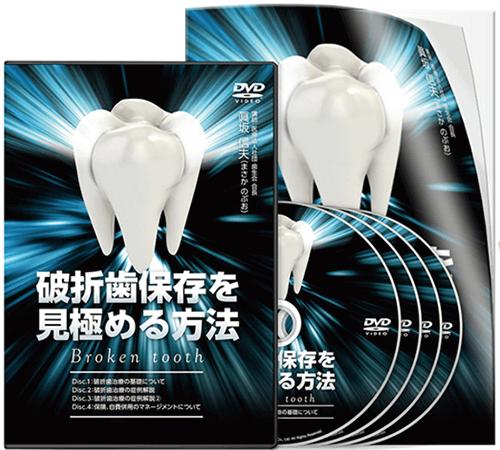 破折歯保存を見極める方法│医療情報研究所DVD